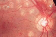 Diabetic-proliferative-Retina-laser