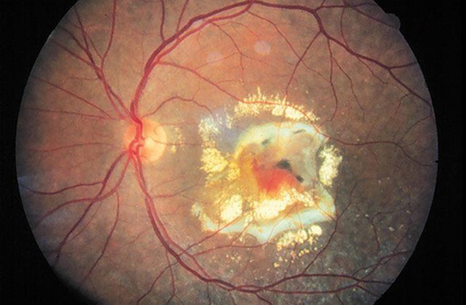 Macular Degneration Wet