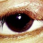 Hordeolum or Stye Along the upper