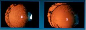 A view of a cloudy capsule before and after a YAG capsulotomy.