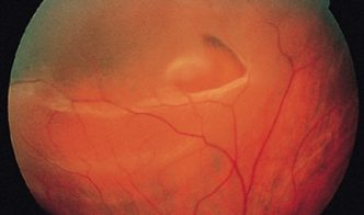 This detachment is due to a retinal break or tear which allows the liquid vitreous to pass through the break and lift off the retina.