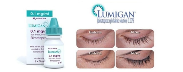 Lumigan eye treatment