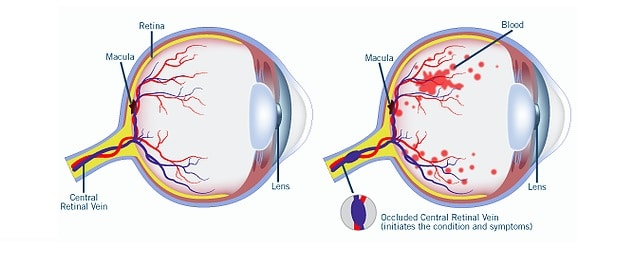 Retinal vein inclusion treatment and risk